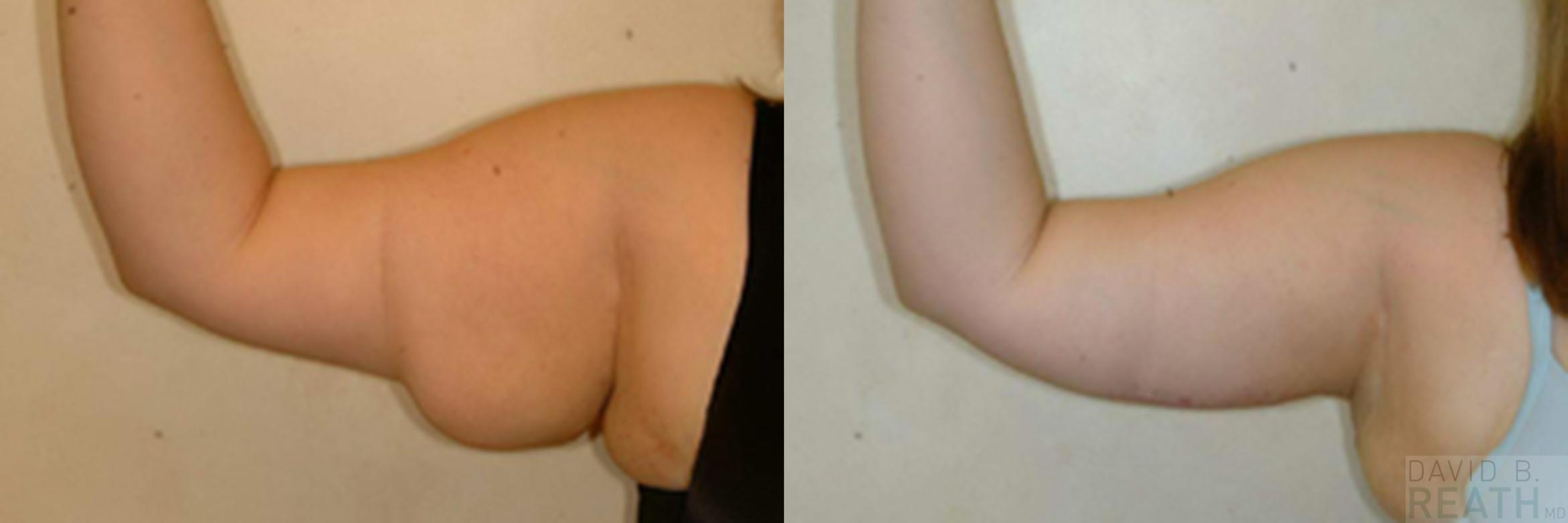 Arm Lift (Brachioplasty) Before & After Photo | Knoxville, Tennessee | David B. Reath, MD
