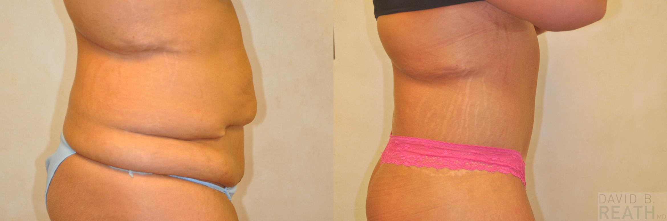 Body Lift Before & After Photo | Knoxville, Tennessee | David B. Reath, MD