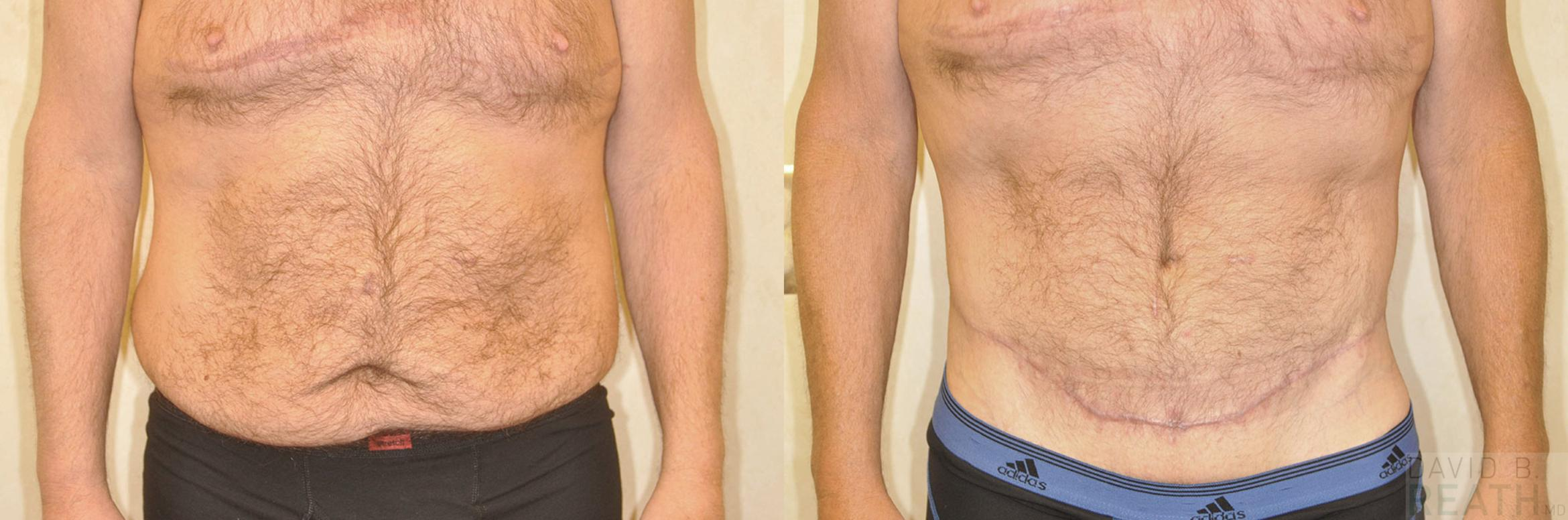 Body Lift for Men Before & After Photo | Knoxville, Tennessee | David B. Reath, MD