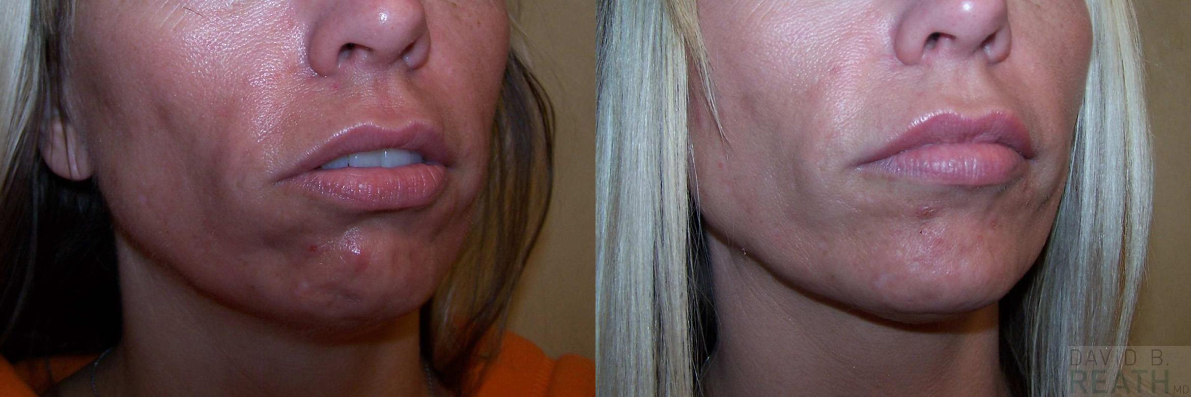Botox Before & After Photo | Knoxville, Tennessee | David B. Reath, MD