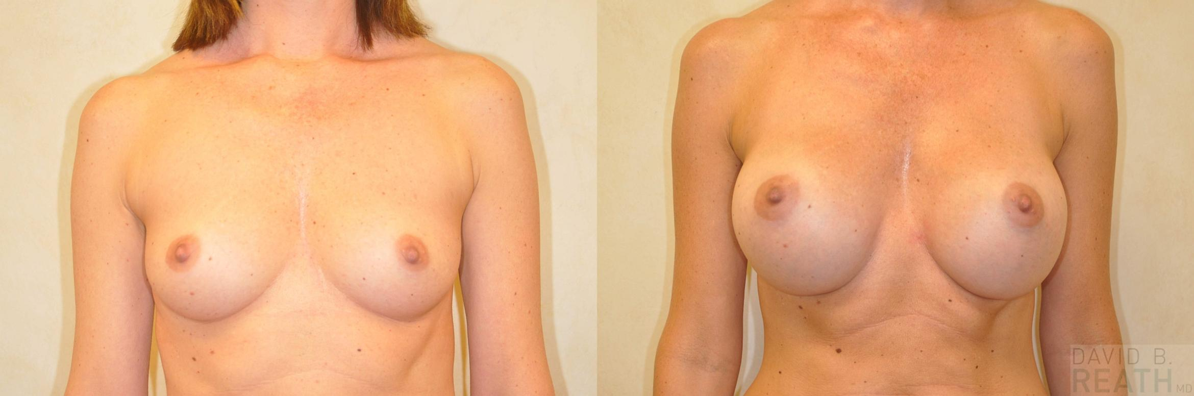 Breast Augmentation (Saline) Before & After Photo | Knoxville, Tennessee | David B. Reath, MD