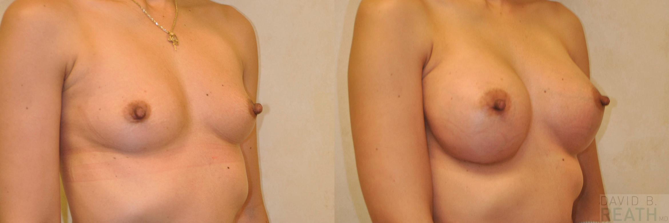 Breast Augmentation (Silicone) Before & After Photo | Knoxville, Tennessee | David B. Reath, MD