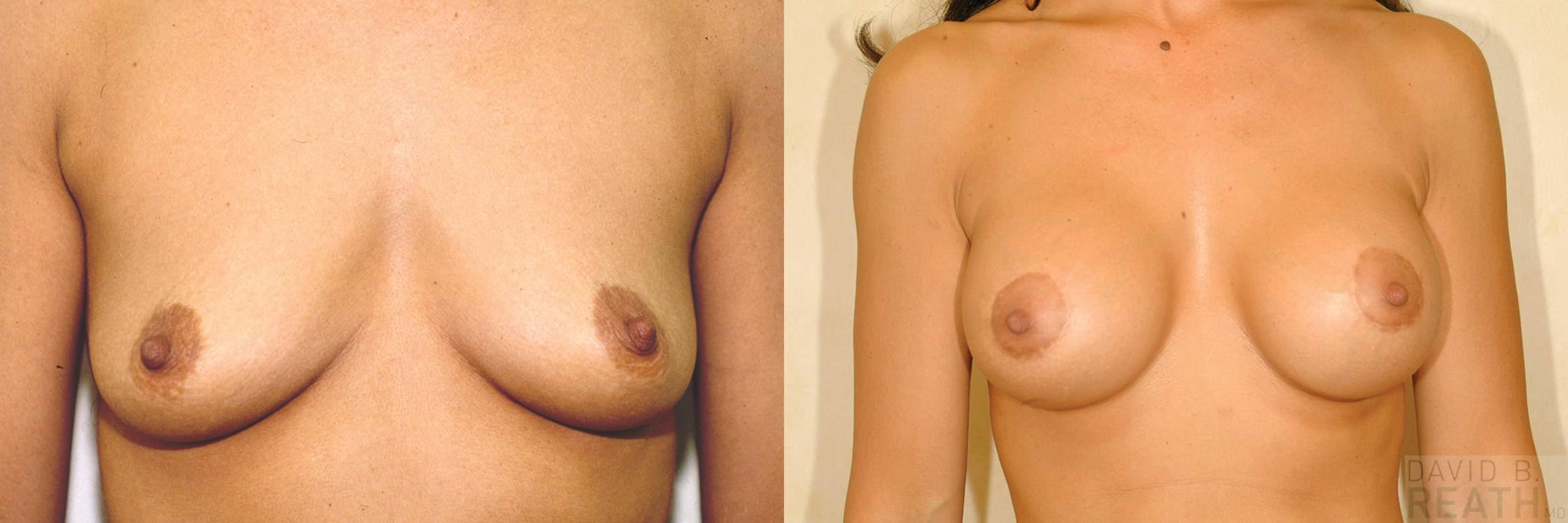 Breast Lift Before & After Photo | Knoxville, Tennessee | David B. Reath, MD