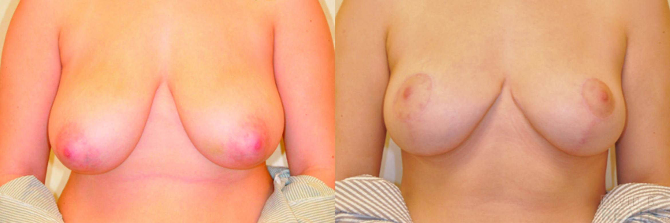 Breast Reduction Before & After Photo | Knoxville, Tennessee | David B. Reath, MD
