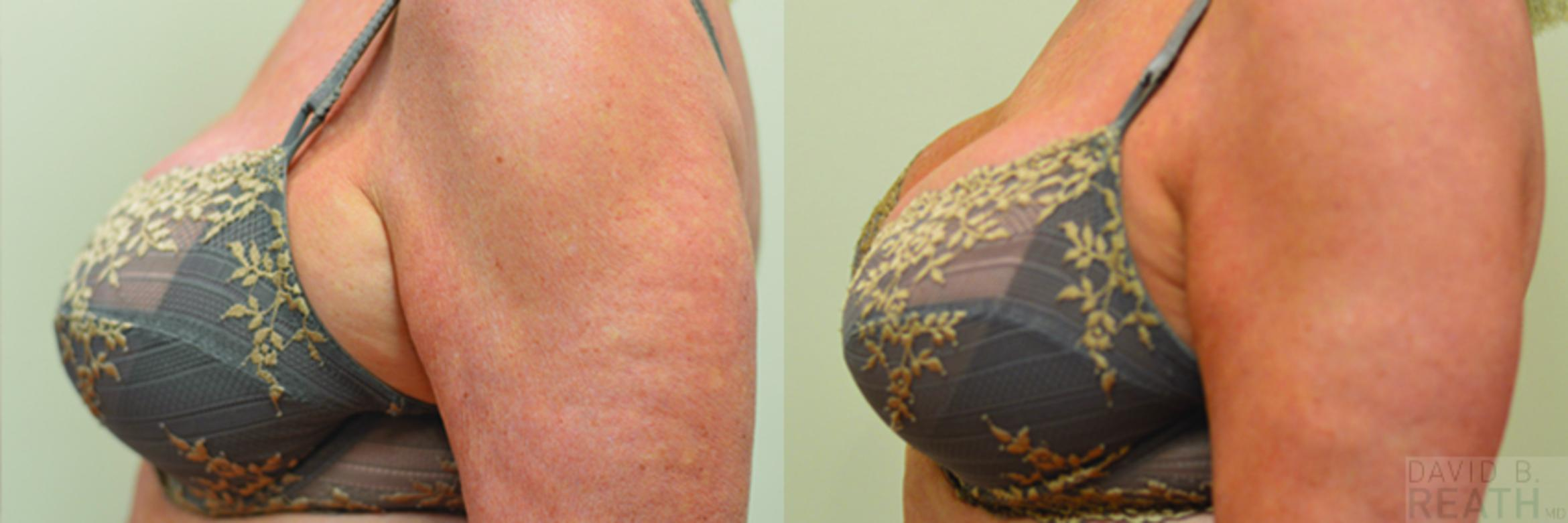 CoolSculpting CoolMini Treatment to Underarm Puffs Before & After Photo | Knoxville, Tennessee | David B. Reath, MD
