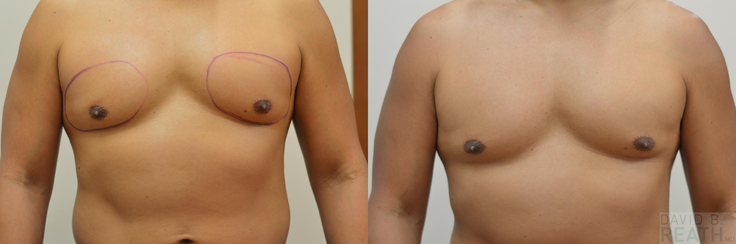 CoolSculpting for Men Before & After Photo | Knoxville, Tennessee | David B. Reath, MD