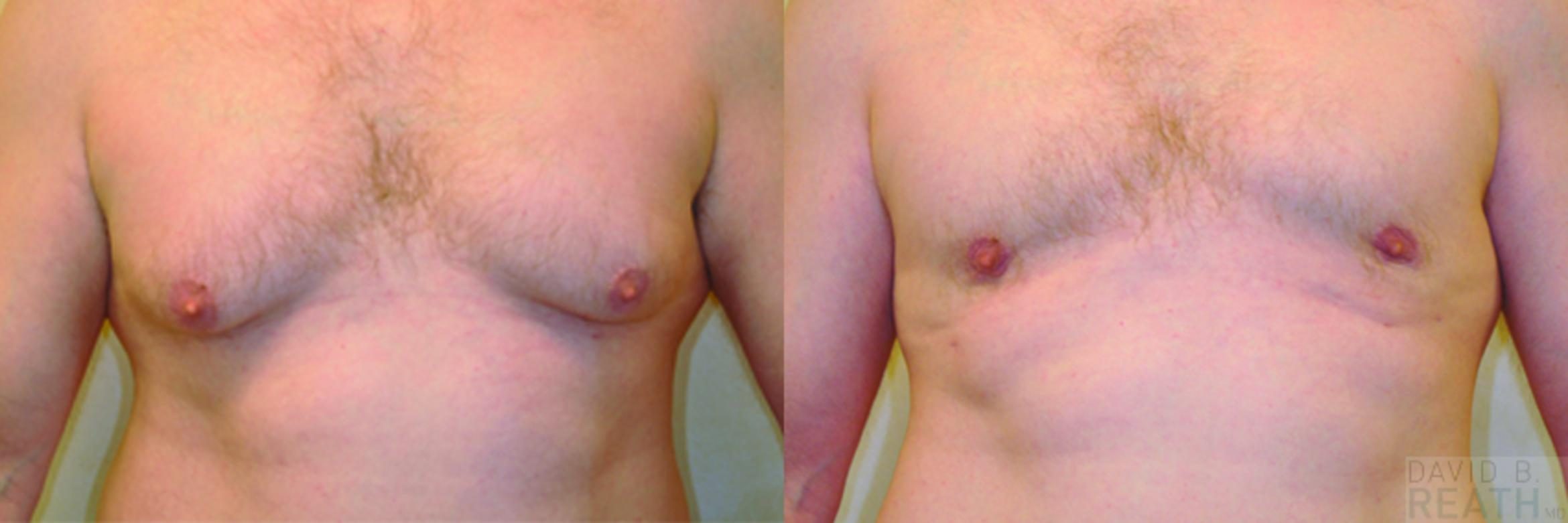 Correction of Gynecomastia (Male Chest Reduction) Before & After Photo | Knoxville, Tennessee | David B. Reath, MD