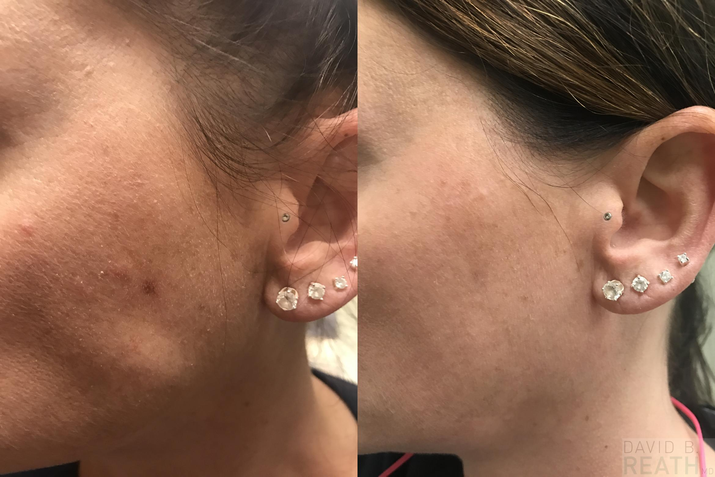 CryoCorrect Before & After Photo | Knoxville, Tennessee | David B. Reath, MD