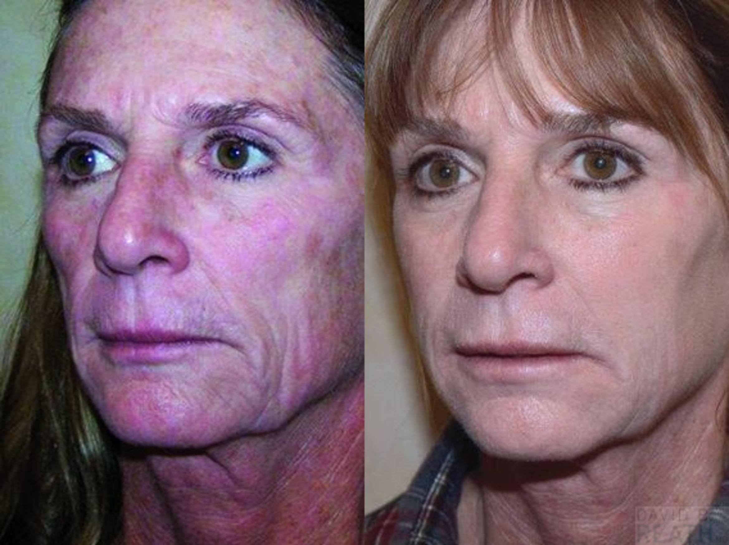 Injectable Fillers Before & After Photo | Knoxville, Tennessee | David B. Reath, MD