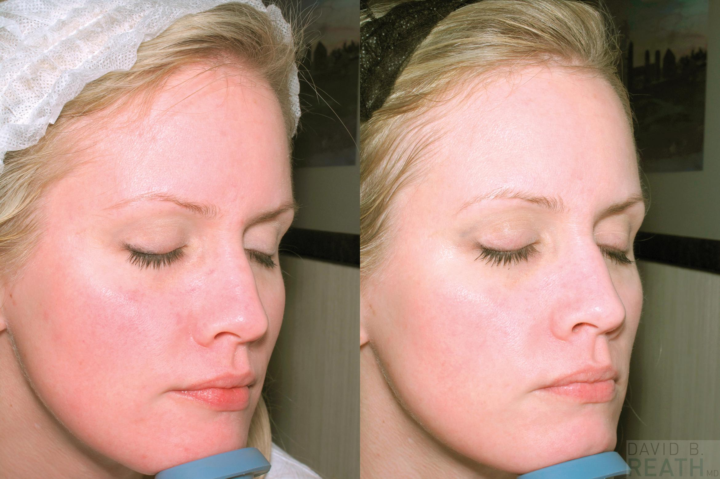 Laser Genesis Before & After Photo | Knoxville, Tennessee | David B. Reath, MD