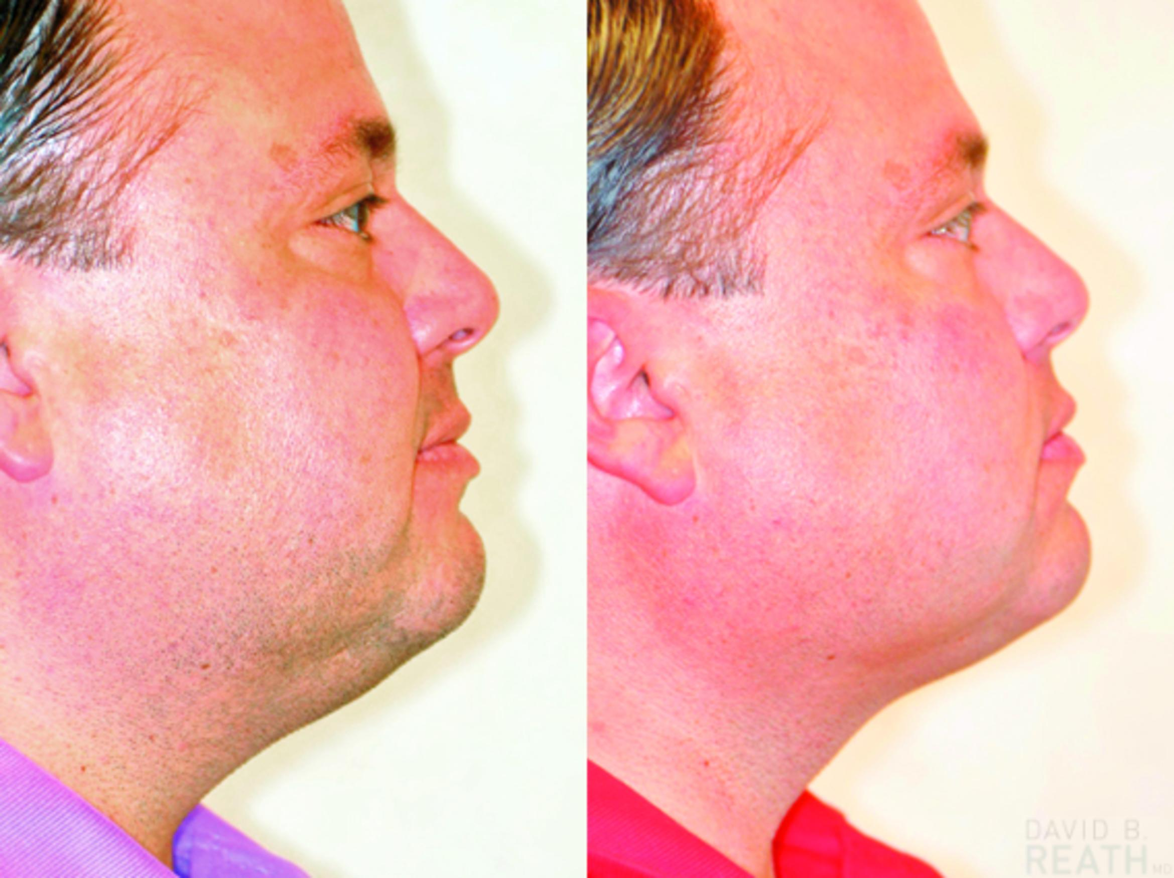 Neck Liposuction Before & After Photo | Knoxville, Tennessee | David B. Reath, MD