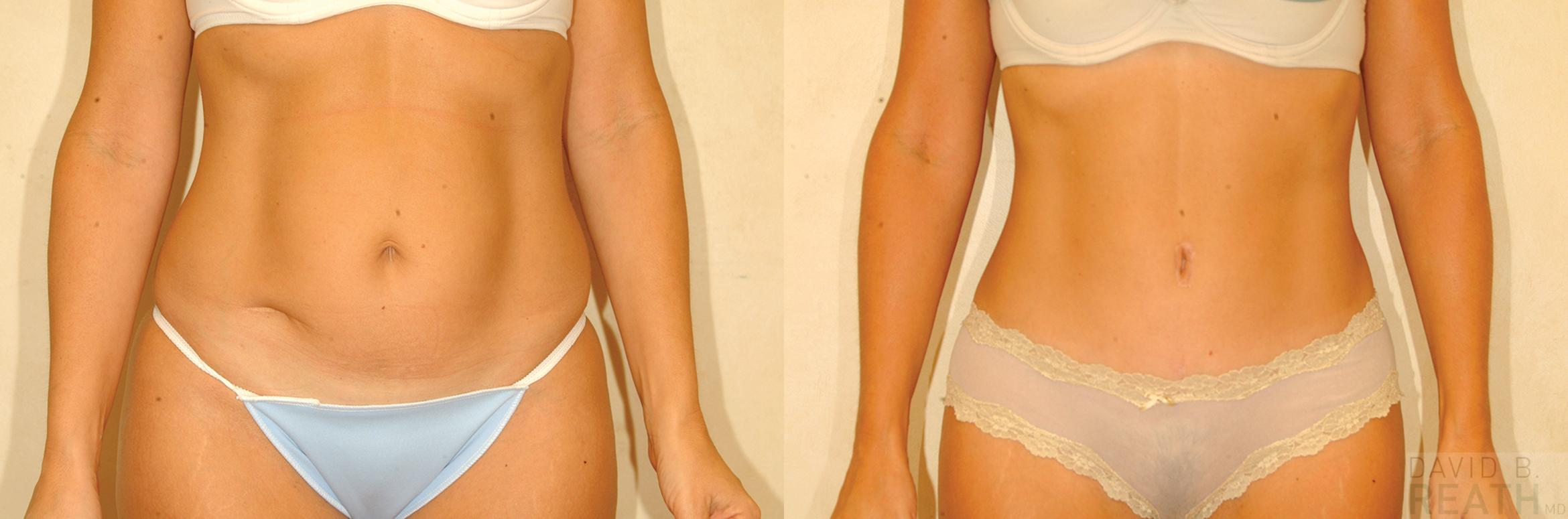 Tummy Tuck (Abdominoplasty) Before & After Photo | Knoxville, Tennessee | David B. Reath, MD