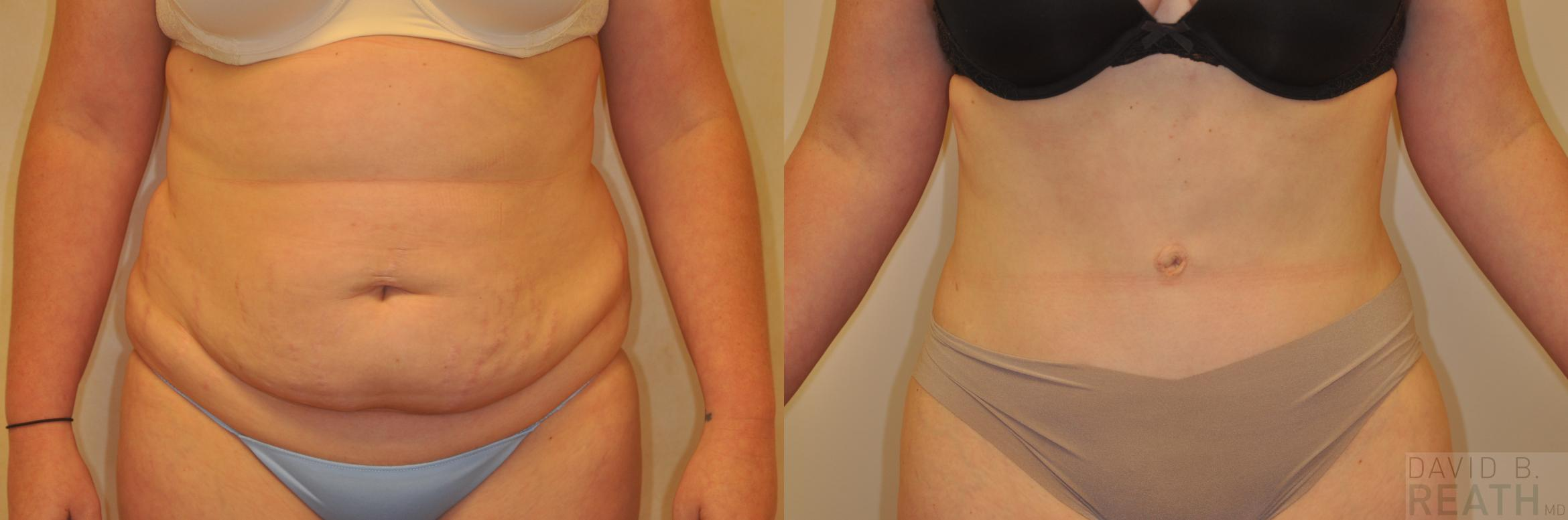 Liposuction Before & After Photo | Knoxville, Tennessee | David B. Reath, MD